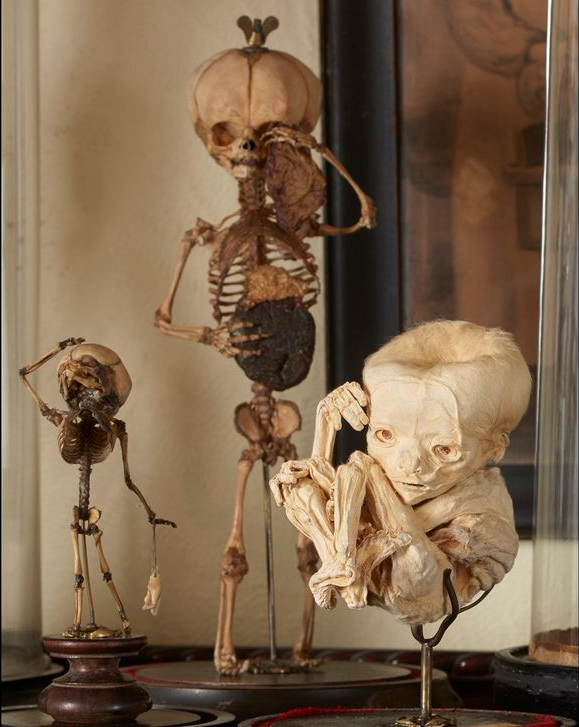 19th_century_fetal_skeleton