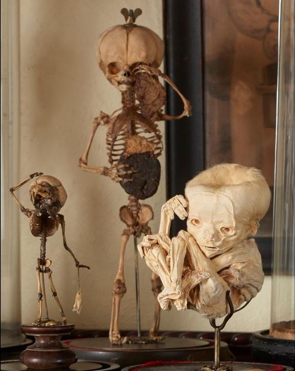 19th_century_fetal_skeleton